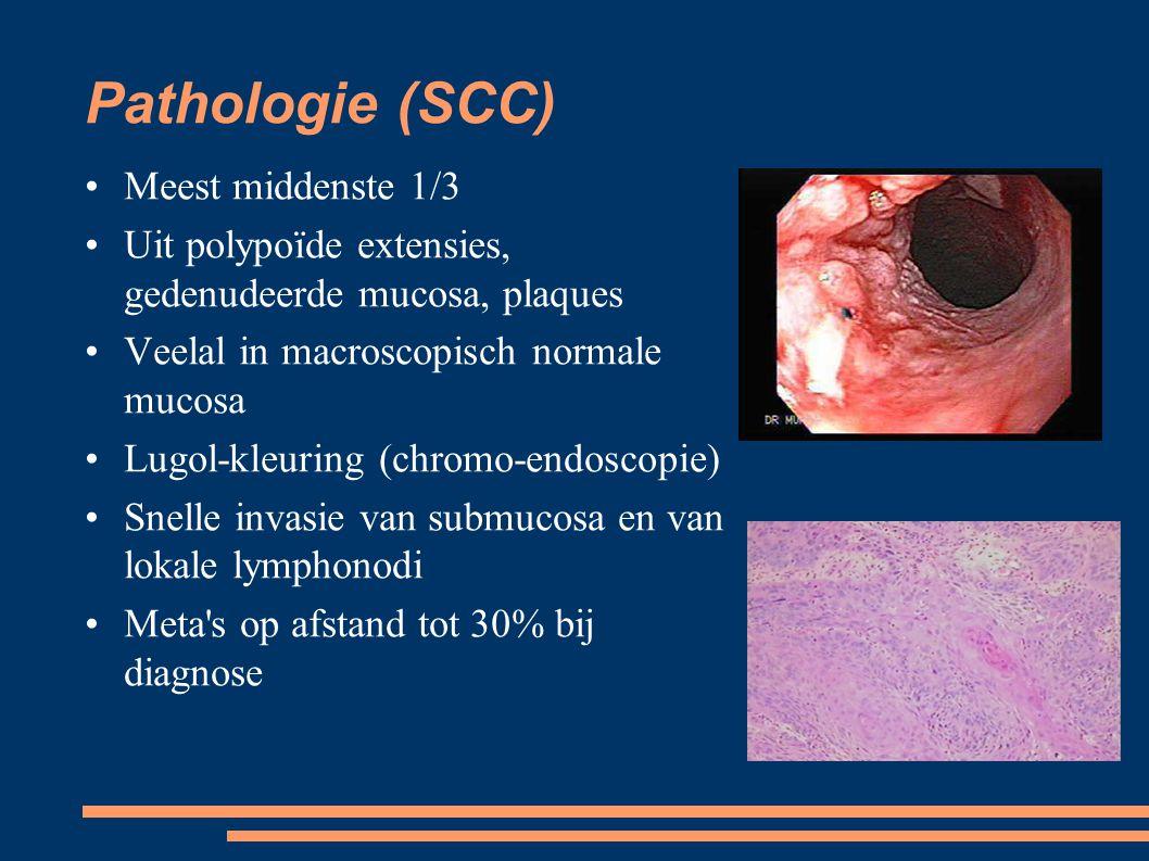Pathologie (SCC) Meest middenste 1/3 Uit polypoïde extensies, gedenudeerde mucosa, plaques Veelal in macroscopisch normale mucosa Lugol-kleuring (chr