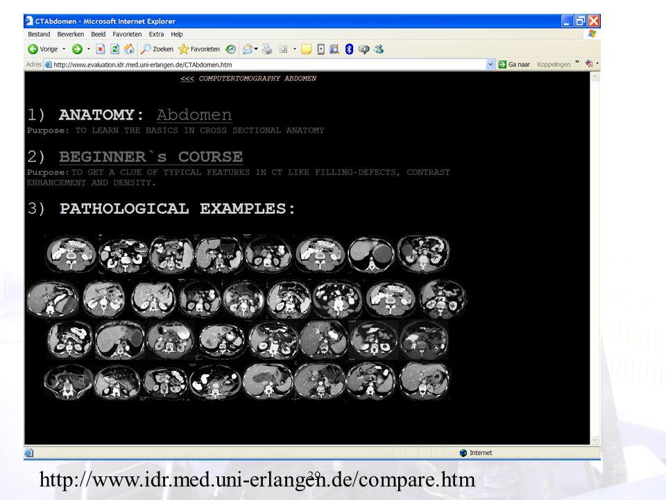 29 http://www.idr.med.uni-erlangen.de/compare.htm