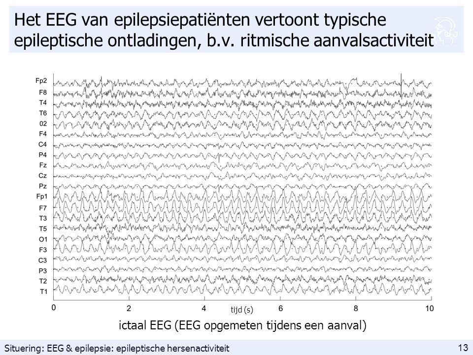 13 Het EEG van epilepsiepatiënten vertoont typische epileptische ontladingen, b.v.