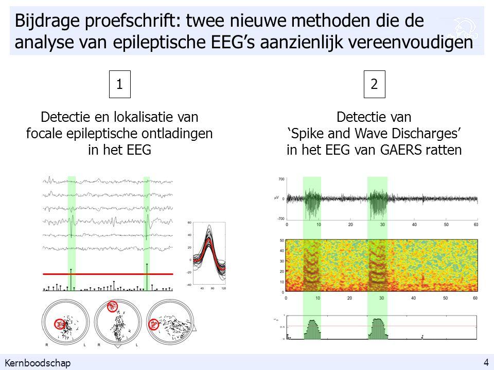 35 tijd (s) Sx(f) f (Hz) grondfrequentie harmonische frequenties Stap 1/4: berekening van het spectrogram Korte-termijn Fouriertransformatie tijd (s) frequentie (Hz) Sx(f) f (Hz) Sx(f) f (Hz) Sx(f) f (Hz) Sx(f) f (Hz) Sx(f) f (Hz) Detectie van SWD: methode