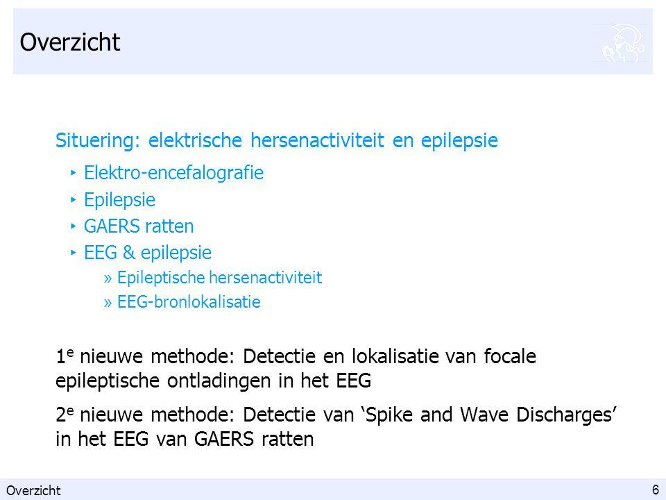 17 Overzicht Situering: elektrische hersenactiviteit en epilepsie 1 e nieuwe methode: Detectie en lokalisatie van focale epileptische ontladingen in het EEG ‣ Methode (5 stappen) ‣ Evaluatie op 8 EEG's ‣ Detectie- en lokalisatieresultaten 2 e nieuwe methode: Detectie van 'Spike and Wave Discharges' in het EEG van GAERS ratten Overzicht