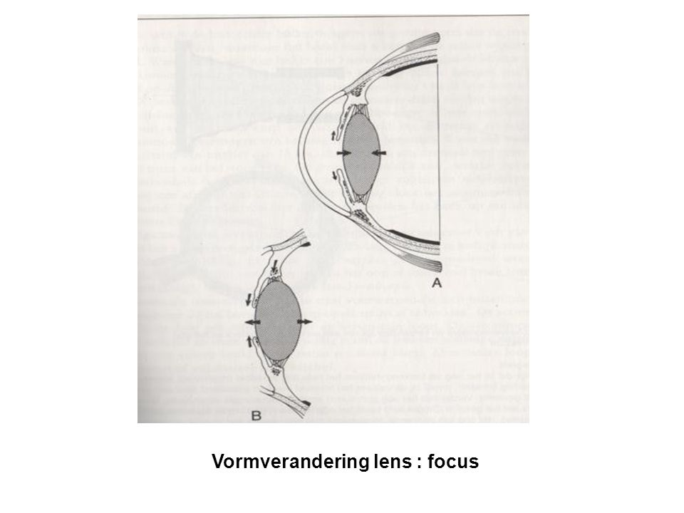 Kort overzicht anatomie van het oog Wand oogbol: 3 lagen (oogrokken) – Retina (netvlies, binnenste oogrok): bevat de fotoreceptoren (en zenuwcellen en bloedvaten) Blinde vlek (optic disc): plaats waar oogzenuw het oog verlaat en de retina dus onderbroken is (bevat geen fotoreceptoren) Macula lutea (gele vlek) en fovea : structuur van retina waar geen zenuwuitlopers en bloedvaatjes zitten, dus enkel fotoreceptoren (zie verder)