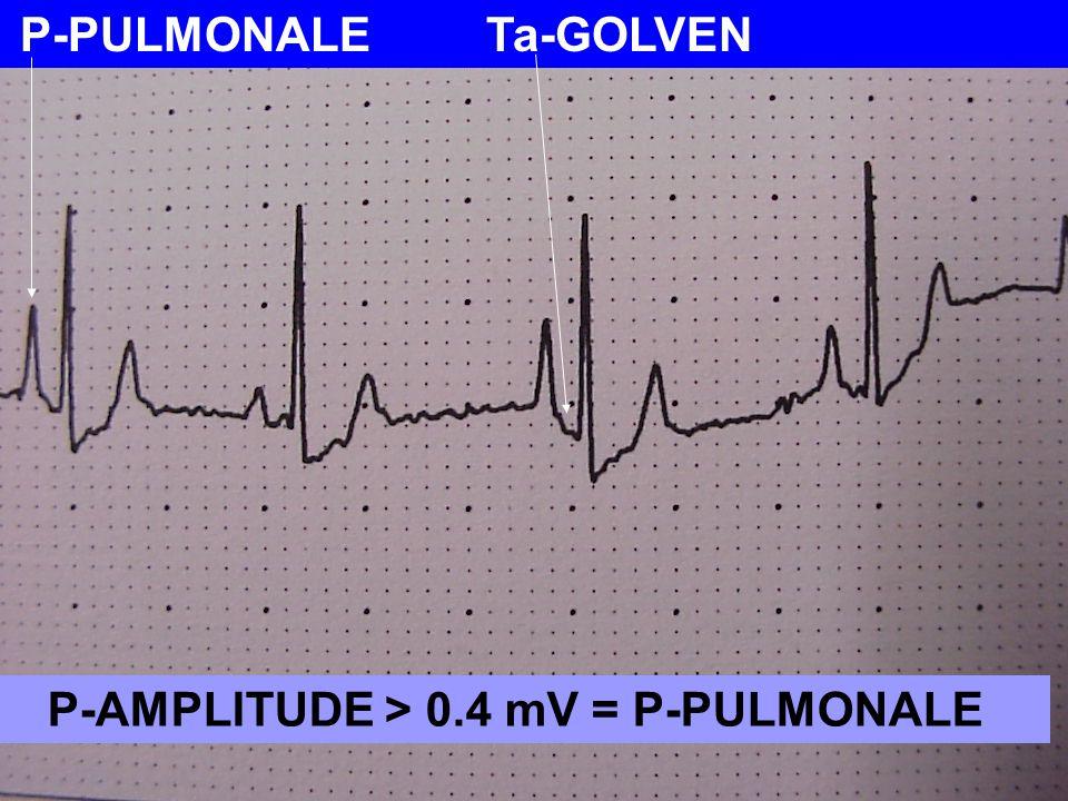 P-PULMONALE Ta-GOLVEN P-AMPLITUDE > 0.4 mV = P-PULMONALE