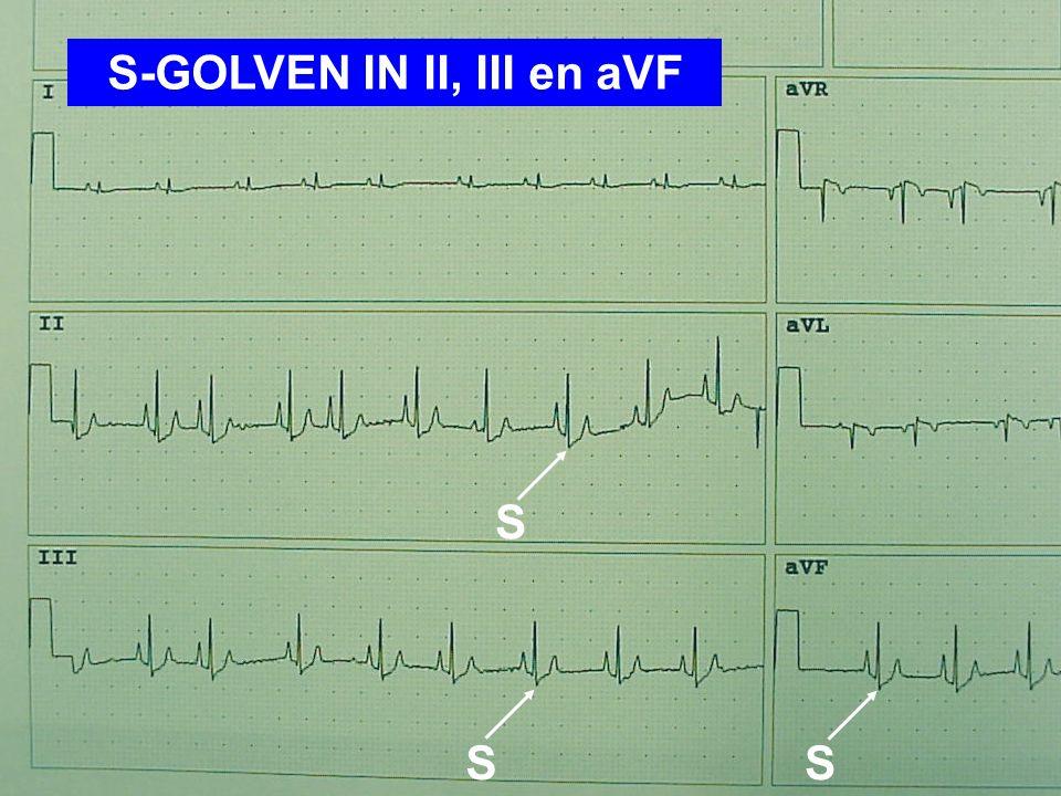 S-GOLVEN IN II, III en aVF S SS
