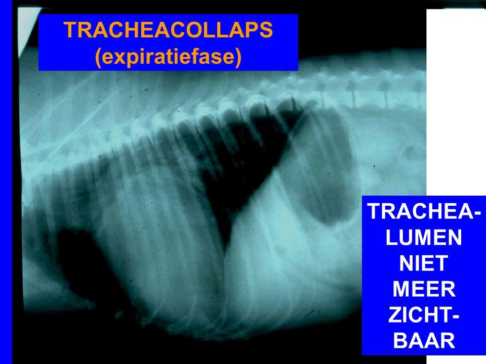 TRACHEACOLLAPS (expiratiefase) TRACHEA- LUMEN NIET MEER ZICHT- BAAR