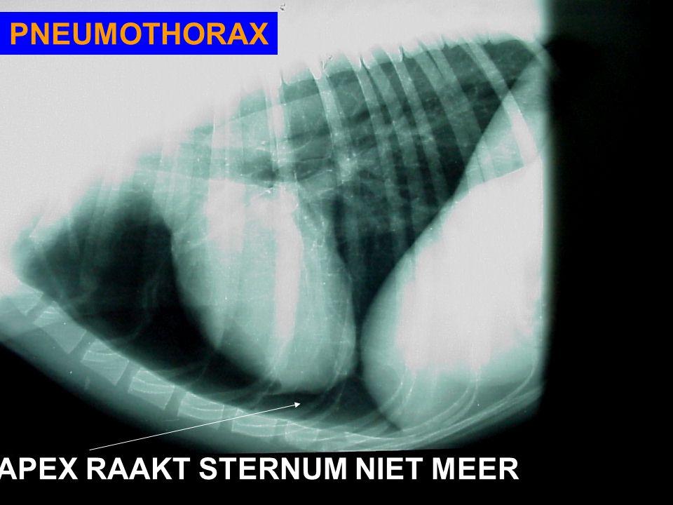 PNEUMOTHORAX APEX RAAKT STERNUM NIET MEER