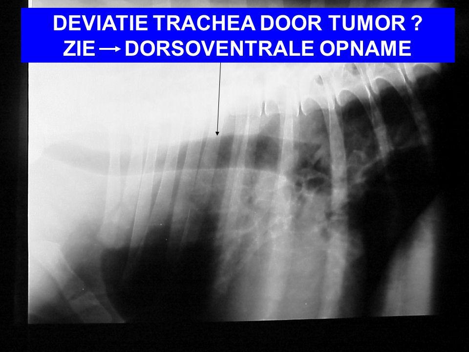 DEVIATIE TRACHEA DOOR TUMOR ? ZIE DORSOVENTRALE OPNAME