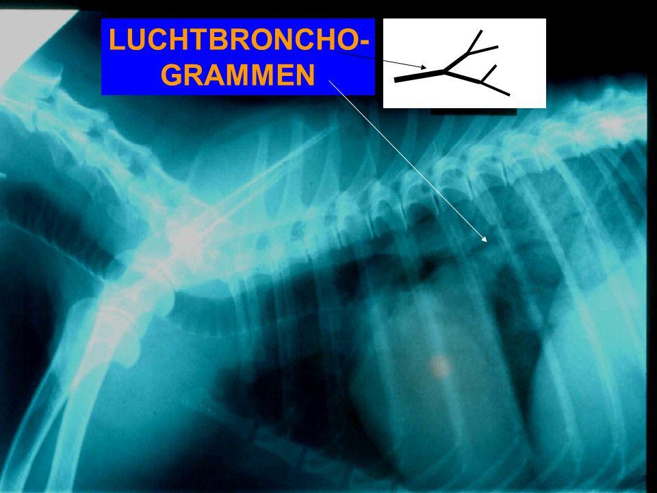 LUCHTBRONCHO- GRAMMEN