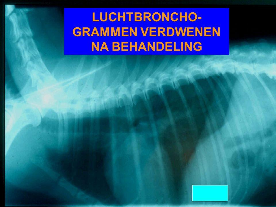 LUCHTBRONCHO- GRAMMEN VERDWENEN NA BEHANDELING