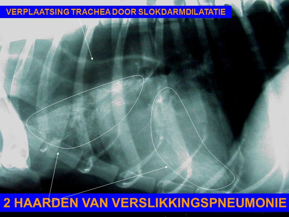 2 HAARDEN VAN VERSLIKKINGSPNEUMONIE VERPLAATSING TRACHEA DOOR SLOKDARMDILATATIE