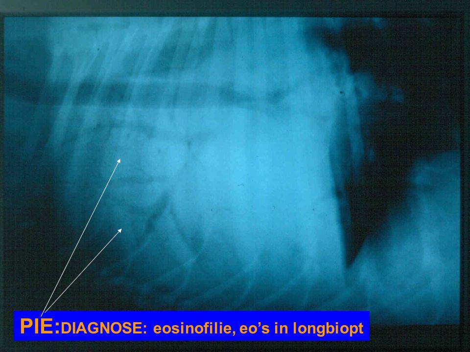 PIE: DIAGNOSE: eosinofilie, eo's in longbiopt