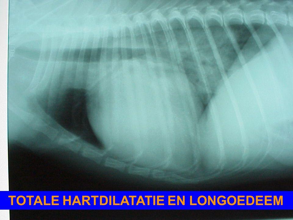 TOTALE HARTDILATATIE EN LONGOEDEEM