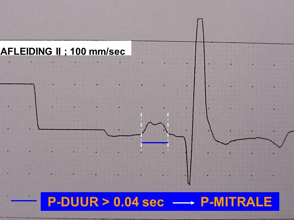 P-DUUR > 0.04 sec P-MITRALE AFLEIDING II ; 100 mm/sec
