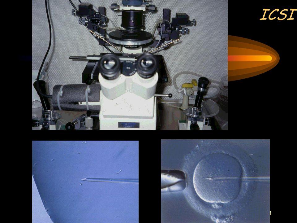 23 Extreme mannelijke infertiliteit Behandeling ? IVF met toepassing van ICSI (intracytoplasmatische sperma-injectie) met chirurgisch verkregen testic