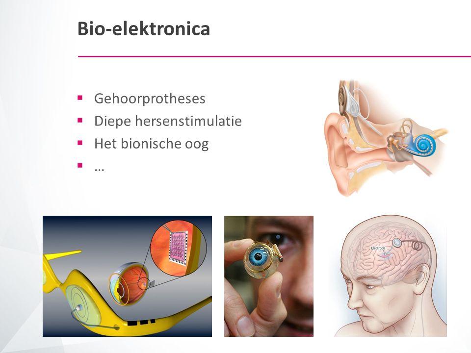 Bio-elektronica  Gehoorprotheses  Diepe hersenstimulatie  Het bionische oog  …