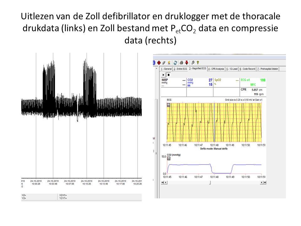 Uitlezen van de Zoll defibrillator en druklogger met de thoracale drukdata (links) en Zoll bestand met P et CO 2 data en compressie data (rechts)