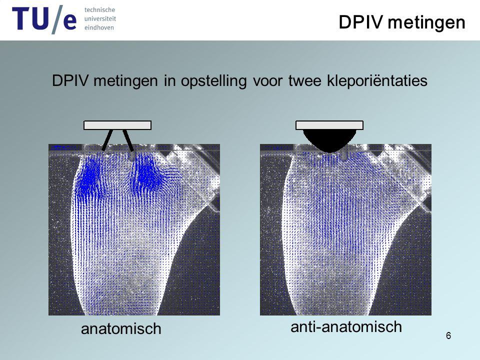 6 DPIV metingen DPIV metingen in opstelling voor twee kleporiëntaties anti-anatomisch anatomisch PIV metingen
