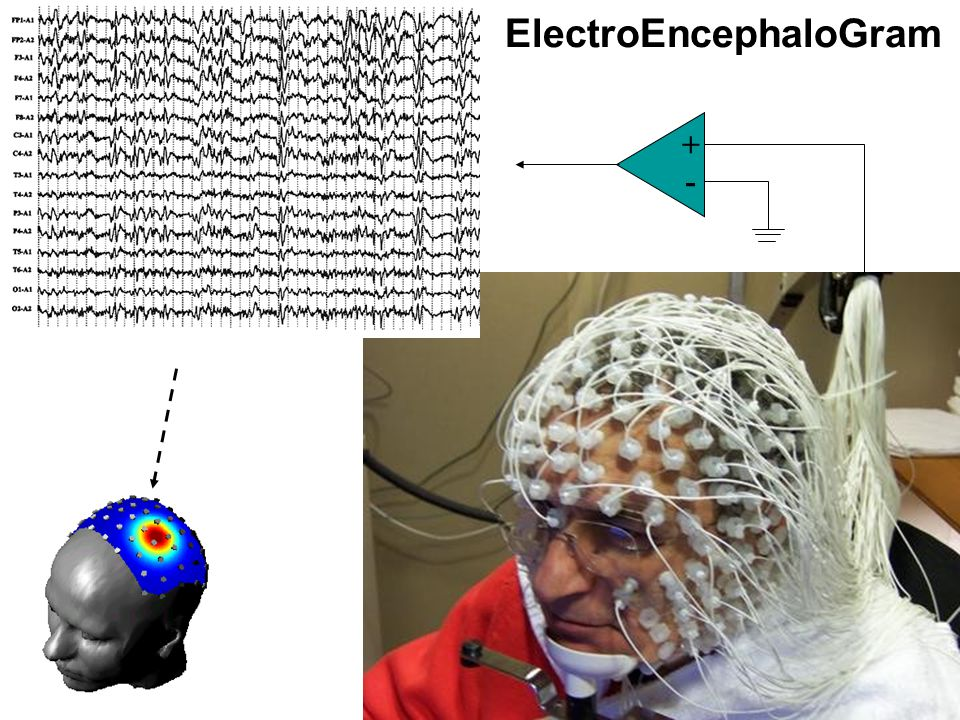Cardiovascular Research Institute Maastricht (CARIM) 6 ElectroEncephaloGram + -