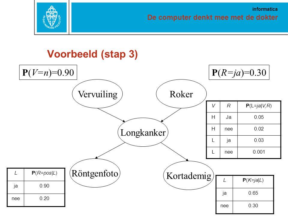 De computer denkt mee met de dokter informatica Voorbeeld (stap 3) VervuilingRoker Longkanker Röntgenfoto Kortademig P(V=n)=0.90P(R=ja)=0.30 VRP(L=ja|V,R) HJa0.05 Hnee0.02 Lja0.03 Lnee0.001 LP(R=pos|L) ja0.90 nee0.20 LP(K=ja|L) ja0.65 nee0.30