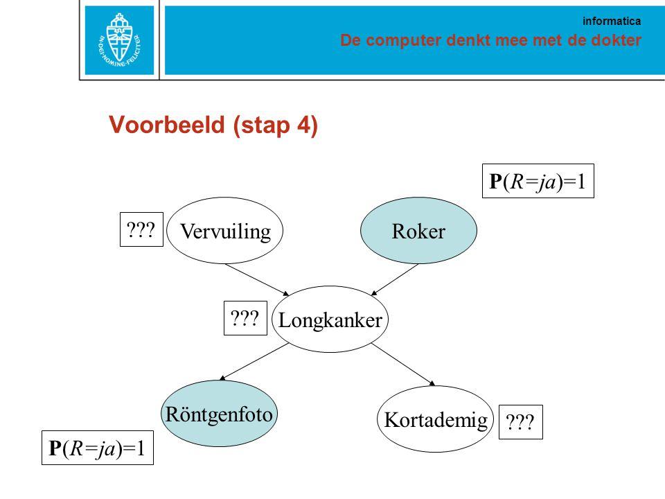 De computer denkt mee met de dokter informatica Voorbeeld (stap 4) VervuilingRoker Longkanker Röntgenfoto Kortademig P(R=ja)=1 ???