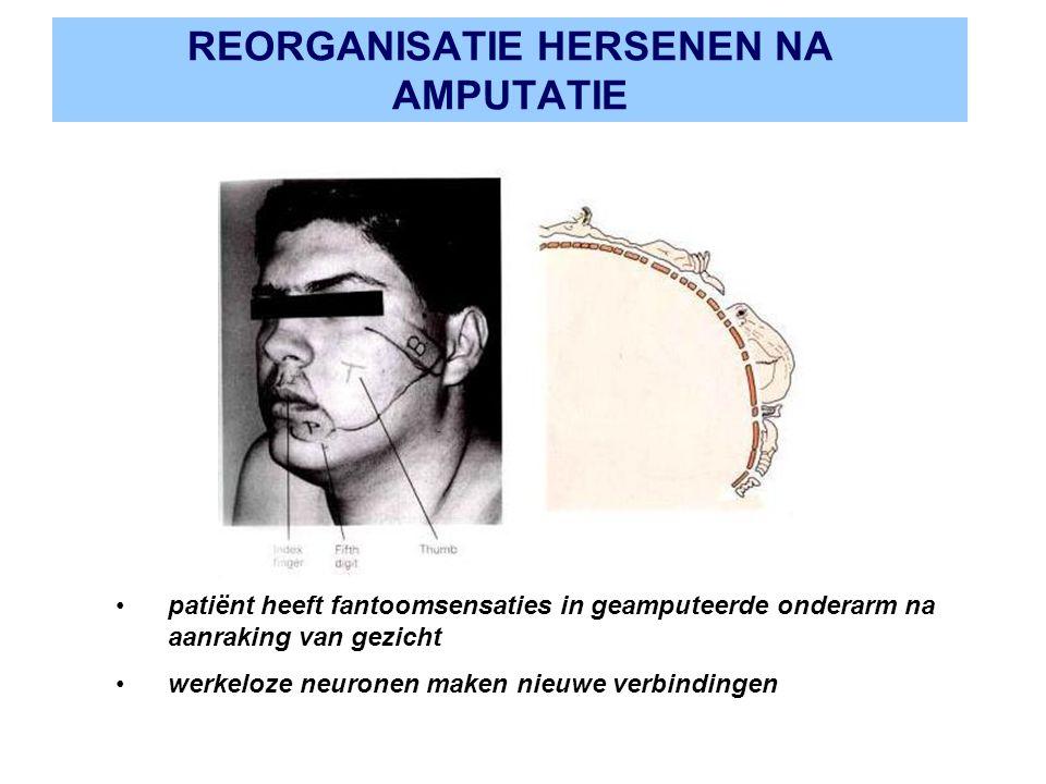 REORGANISATIE HERSENEN NA AMPUTATIE patiënt heeft fantoomsensaties in geamputeerde onderarm na aanraking van gezicht werkeloze neuronen maken nieuwe v