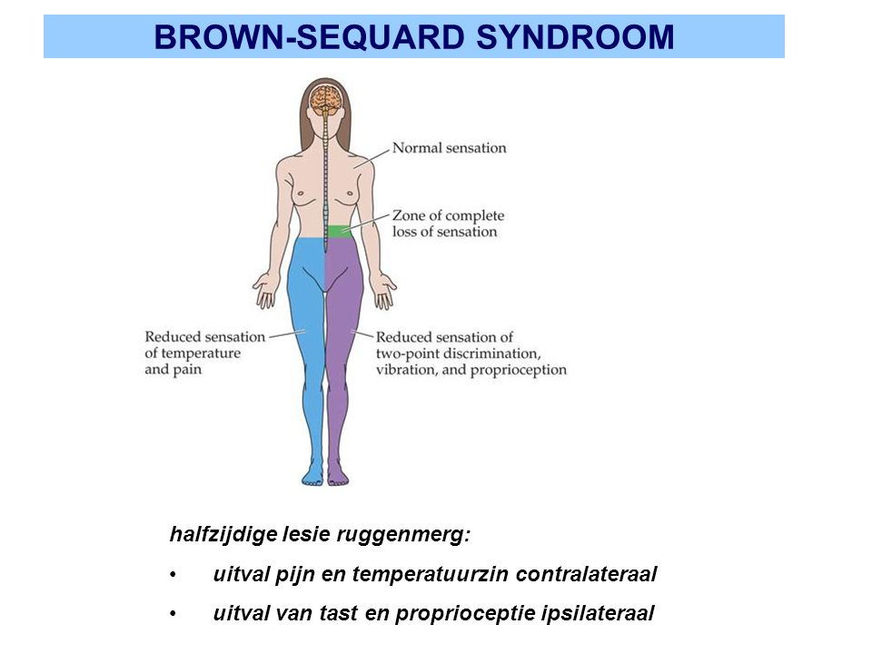 BROWN-SEQUARD SYNDROOM halfzijdige lesie ruggenmerg: uitval pijn en temperatuurzin contralateraal uitval van tast en proprioceptie ipsilateraal