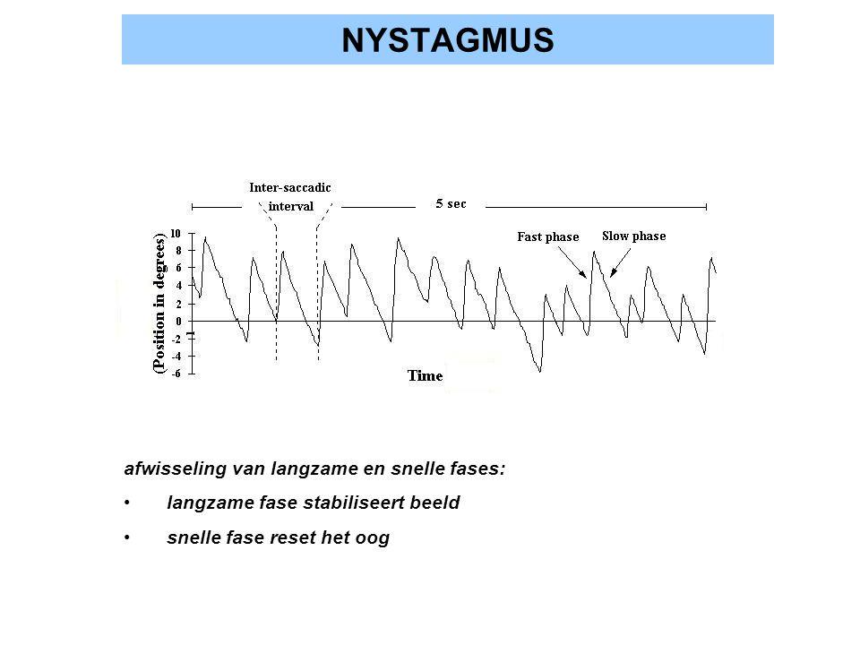 NYSTAGMUS afwisseling van langzame en snelle fases: langzame fase stabiliseert beeld snelle fase reset het oog