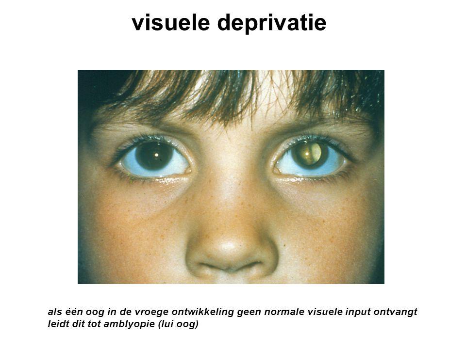 visuele deprivatie als één oog in de vroege ontwikkeling geen normale visuele input ontvangt leidt dit tot amblyopie (lui oog)