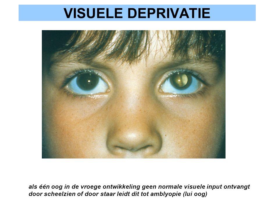 VISUELE DEPRIVATIE als één oog in de vroege ontwikkeling geen normale visuele input ontvangt door scheelzien of door staar leidt dit tot amblyopie (lu