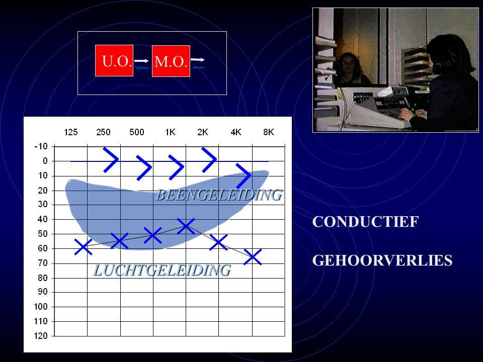 CONDUCTIEF GEHOORVERLIES M.O. U.O. LUCHTGELEIDING BEENGELEIDING