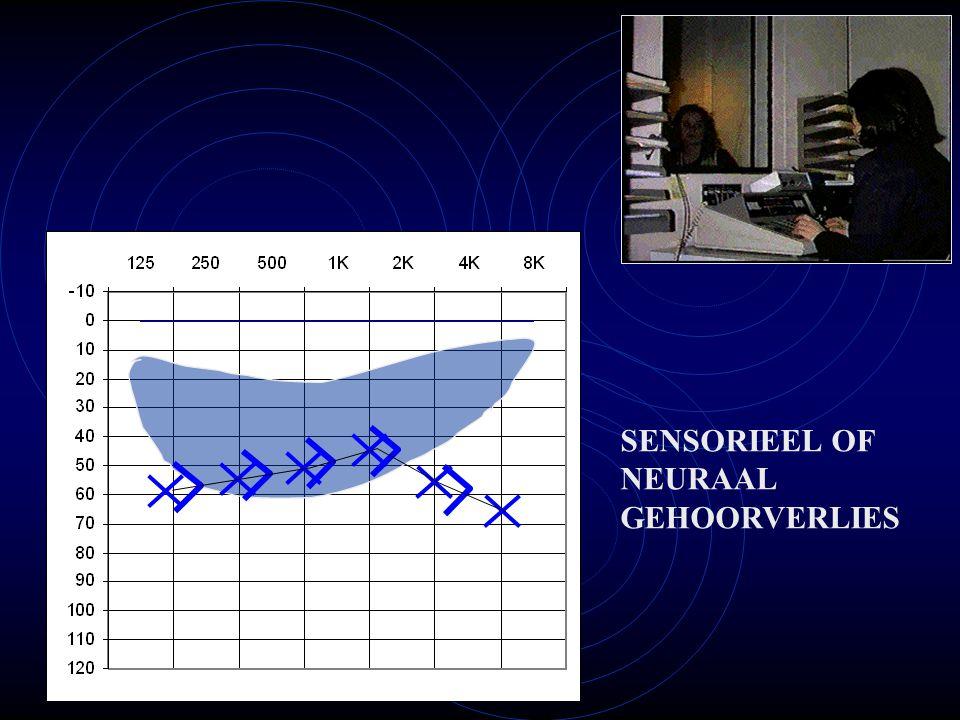 SENSORIEEL OF NEURAAL GEHOORVERLIES