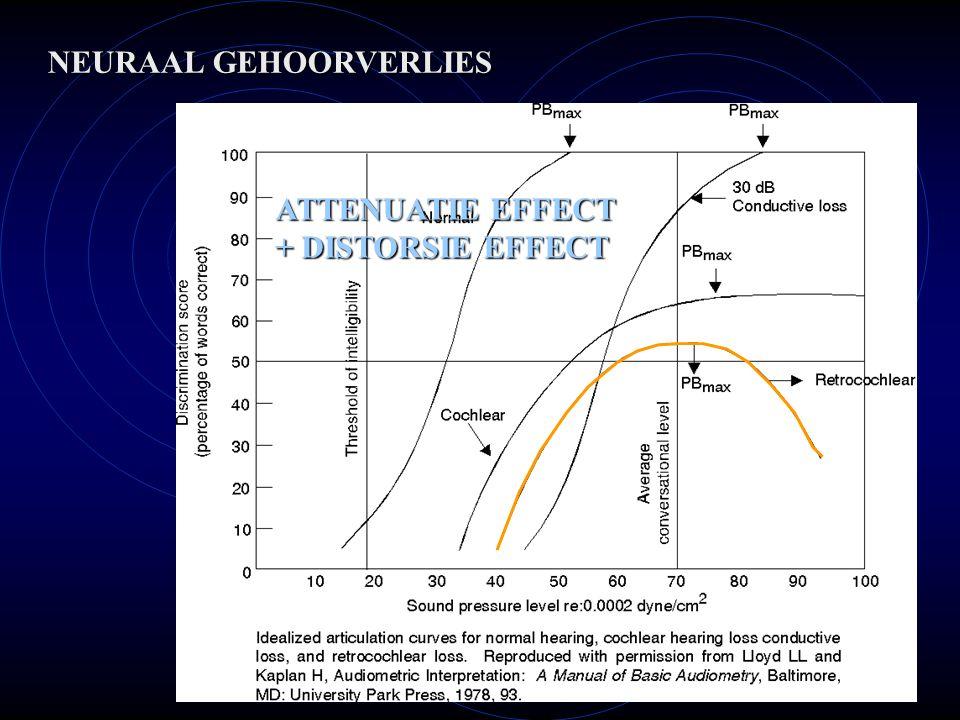 NEURAAL GEHOORVERLIES ATTENUATIE EFFECT + DISTORSIE EFFECT