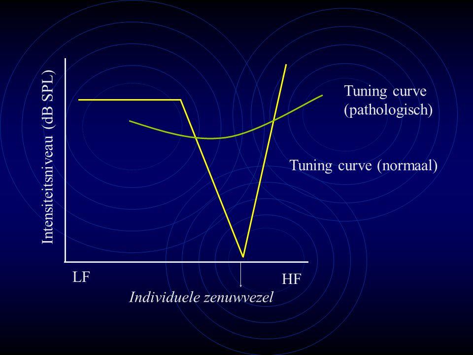Tuning curve (normaal) Tuning curve (pathologisch) LF HF Individuele zenuwvezel Intensiteitsniveau (dB SPL)