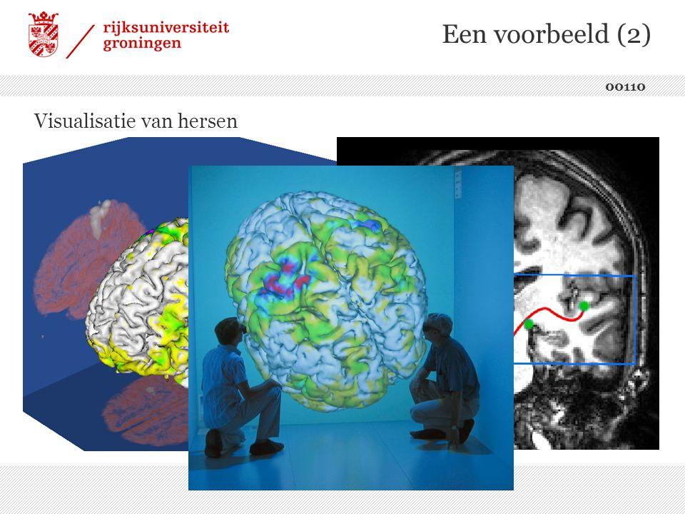 Een voorbeeld (2) Visualisatie van hersen 00110