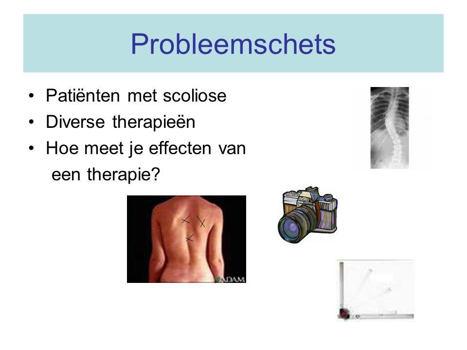 Probleemschets Patiënten met scoliose Diverse therapieën Hoe meet je effecten van een therapie?