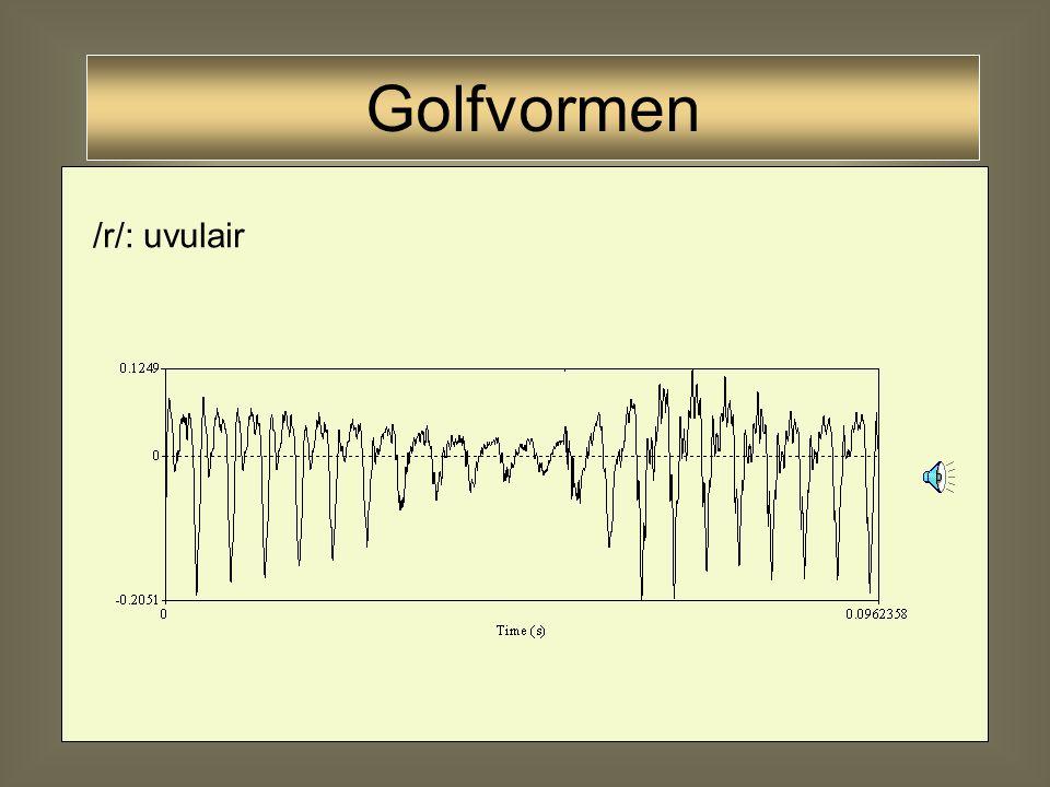 33 /r/: verglijding van vocaal /r/: approximant (Kinderen voor Kinderen) Golfvormen