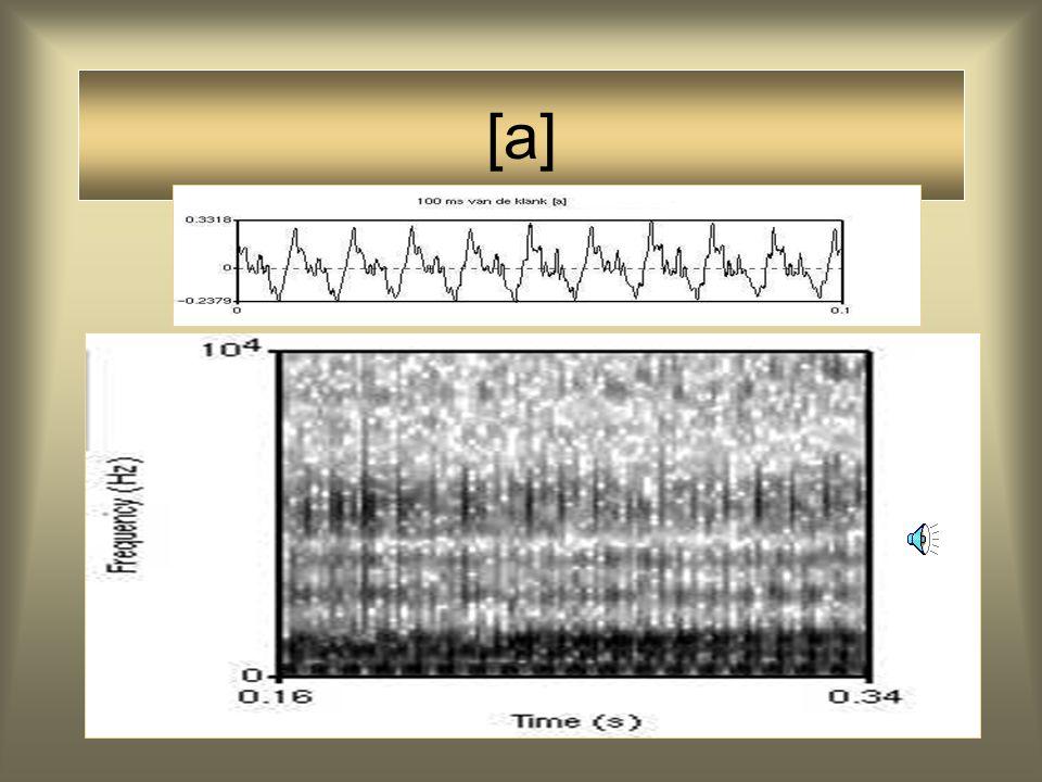52 Articulatie Spectrogram