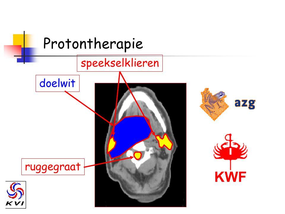 Protontherapie KWF doelwit ruggegraat speekselklieren