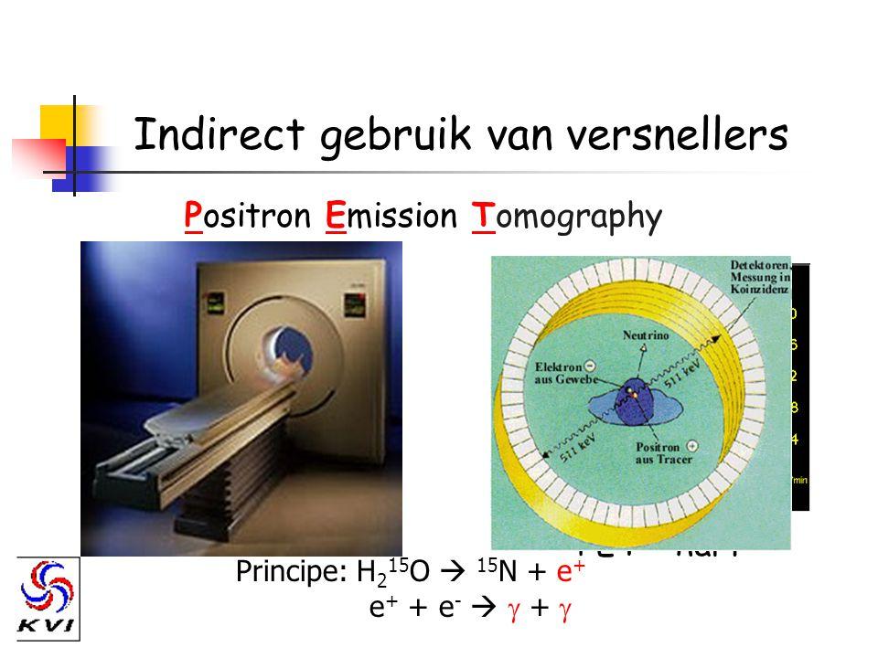 Indirect gebruik van versnellers PET - hart Positron Emission Tomography Principe: H 2 15 O  15 N + e + e + + e -   + 