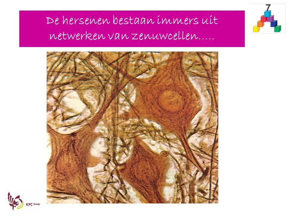 De hersenen bestaan immers uit netwerken van zenuwcellen…..