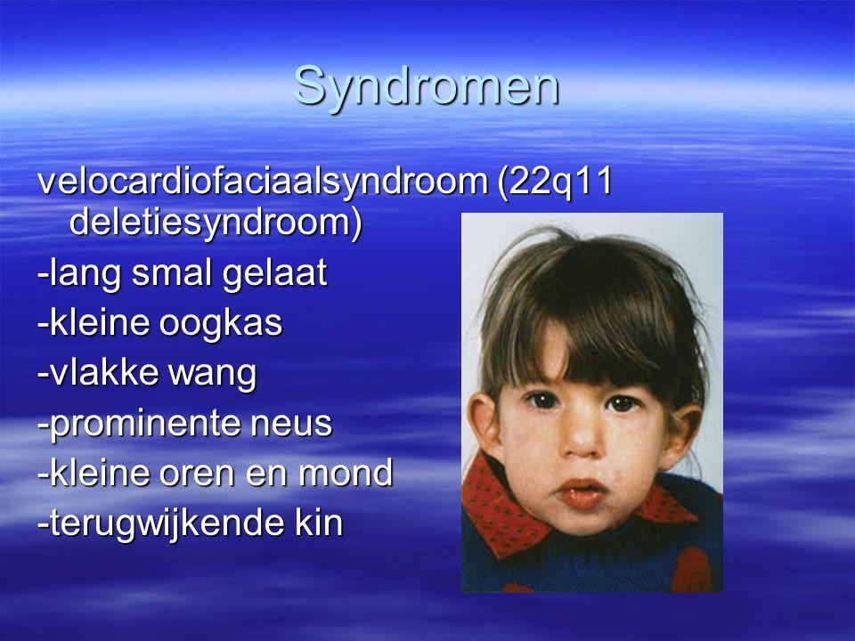 Syndromen velocardiofaciaalsyndroom (22q11 deletiesyndroom) -lang smal gelaat -kleine oogkas -vlakke wang -prominente neus -kleine oren en mond -terug