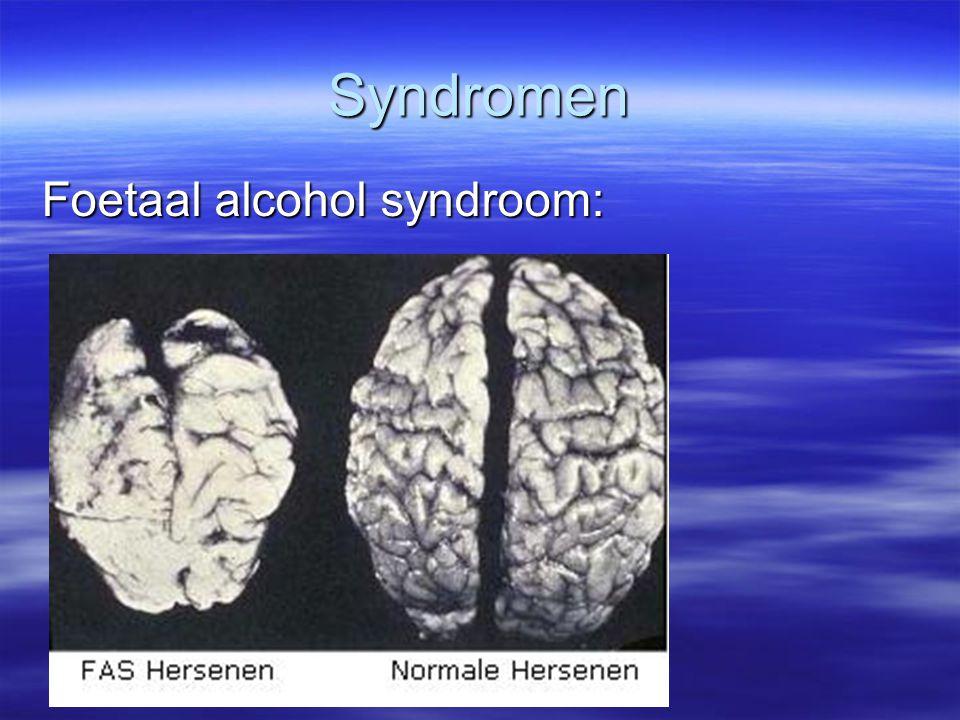 Syndromen