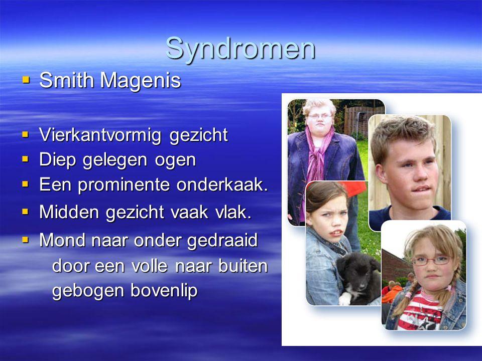 Syndromen  Smith Magenis  Vierkantvormig gezicht  Diep gelegen ogen  Een prominente onderkaak.  Midden gezicht vaak vlak.  Mond naar onder gedra