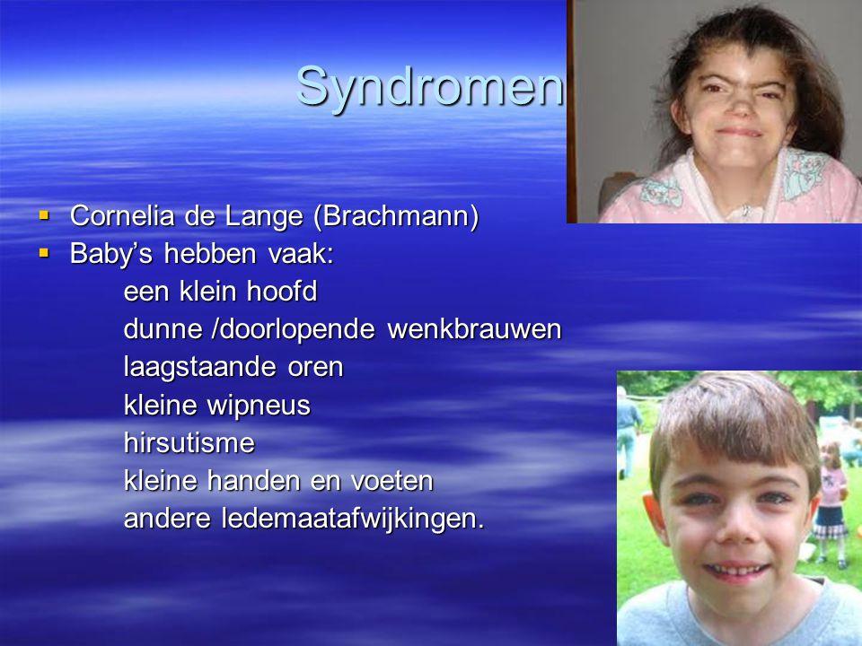 Syndromen  Cornelia de Lange (Brachmann)  Baby's hebben vaak: een klein hoofd dunne /doorlopende wenkbrauwen laagstaande oren kleine wipneus hirsuti