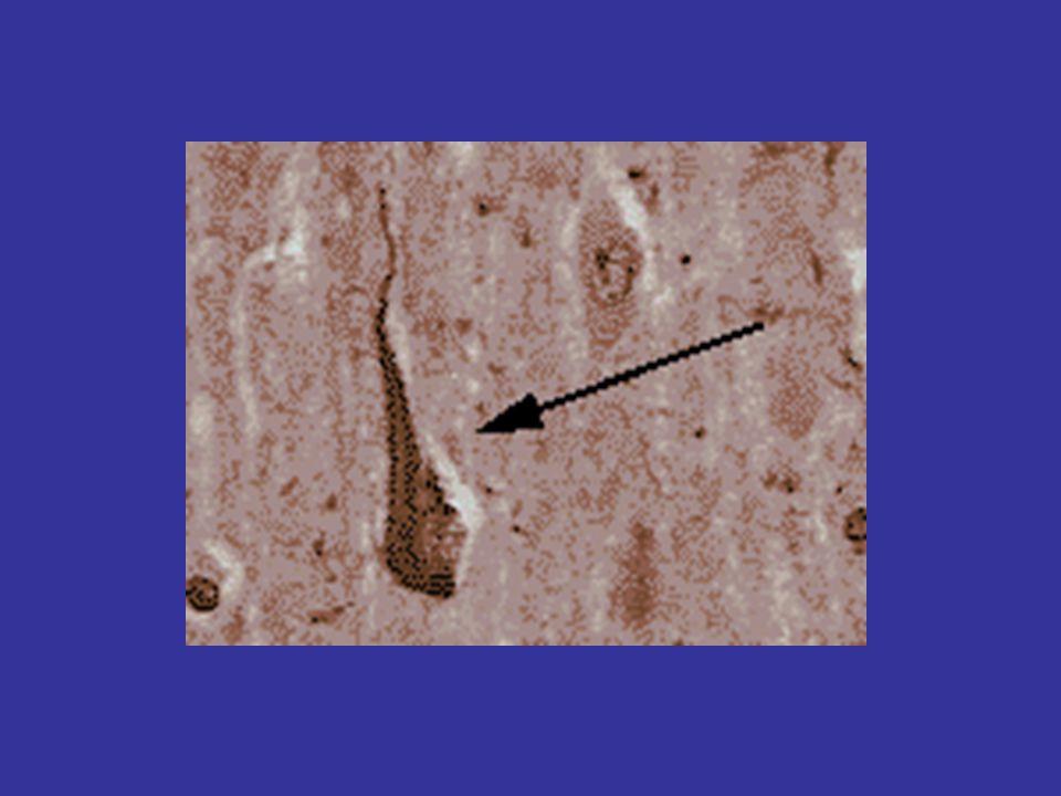 De ziekte van Alzheimer en Aβ Etiologie: stoornis van de Aβ productie Diagnostiek: Beeldvorming Aβ in hersenen en bepaling Aβ en tau in liquor Therapie: remming Aβ productie of stimulering van opruiming.