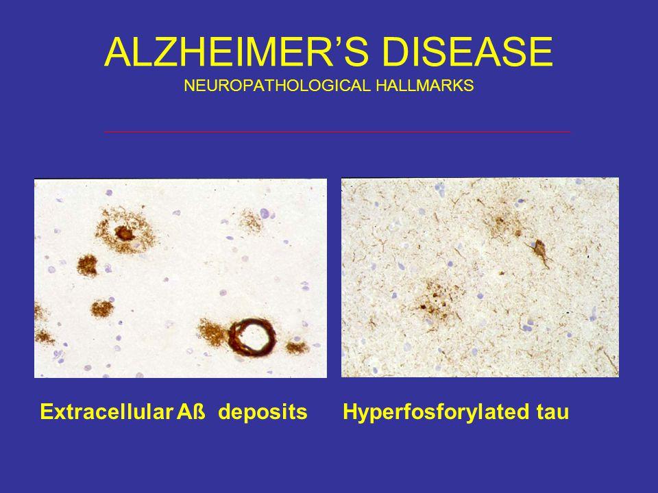 ALZHEIMER'S DISEASE NEUROPATHOLOGICAL HALLMARKS Extracellular Aß depositsHyperfosforylated tau