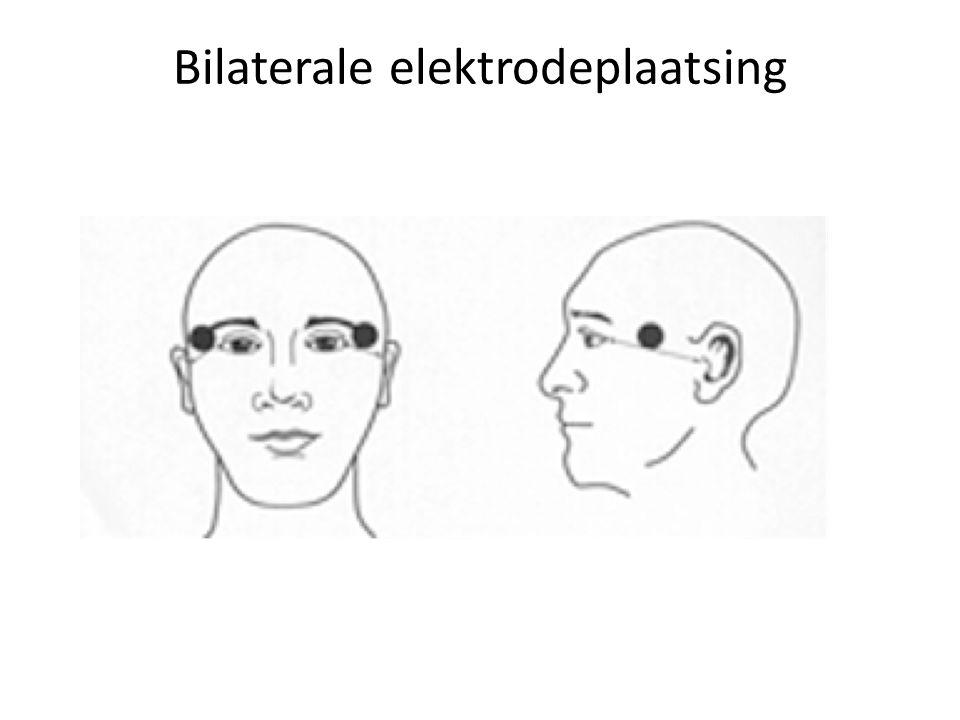 Bilaterale elektrodeplaatsing