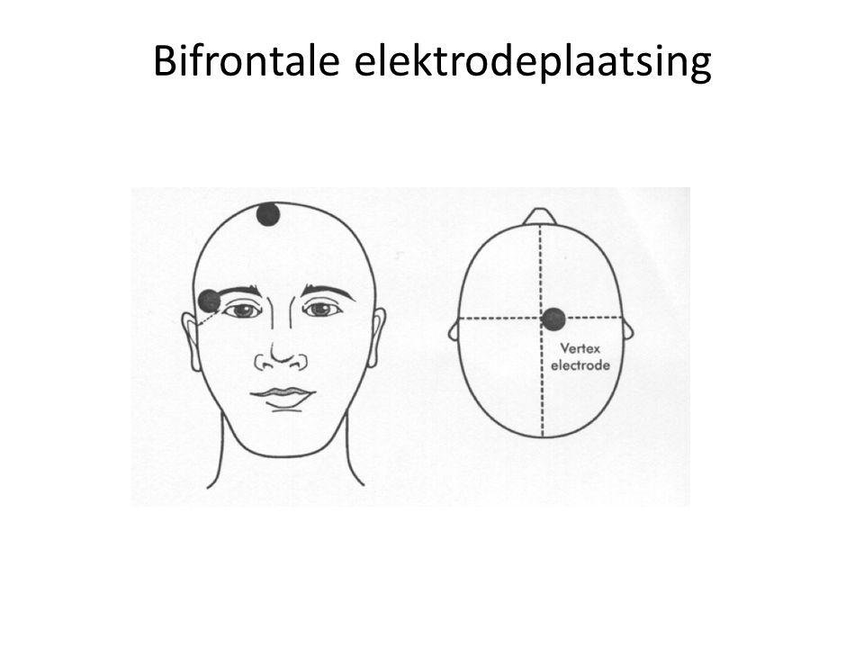 Bifrontale elektrodeplaatsing
