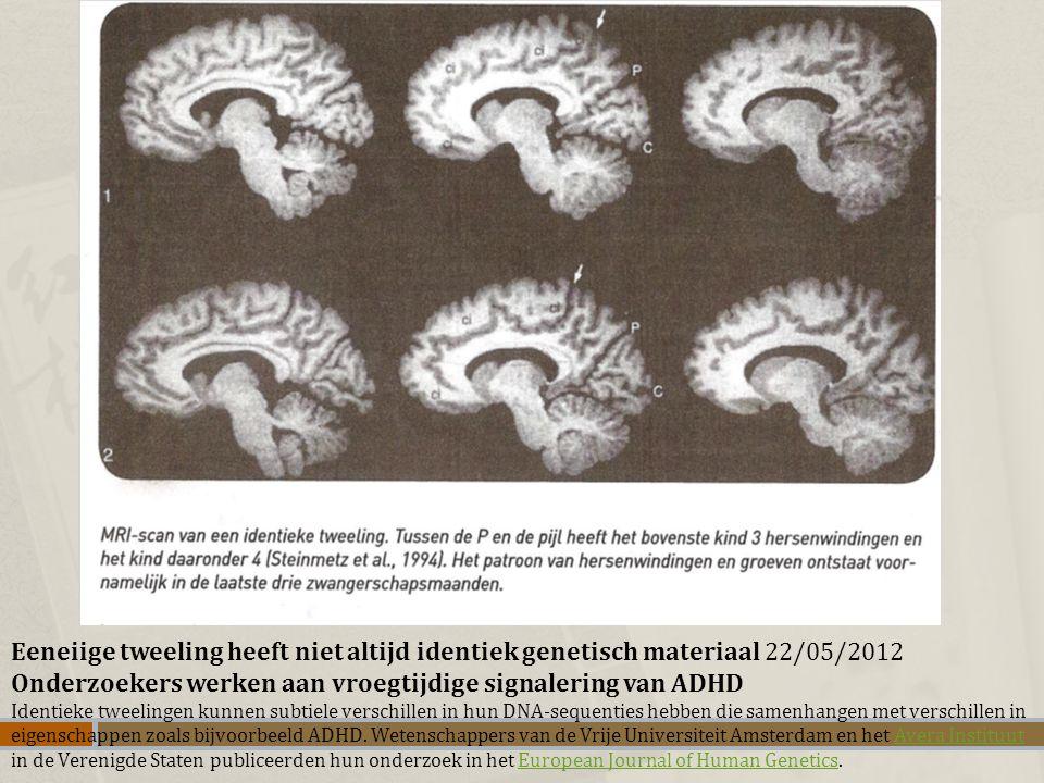 Eeneiige tweeling heeft niet altijd identiek genetisch materiaal 22/05/2012 Onderzoekers werken aan vroegtijdige signalering van ADHD Identieke tweeli