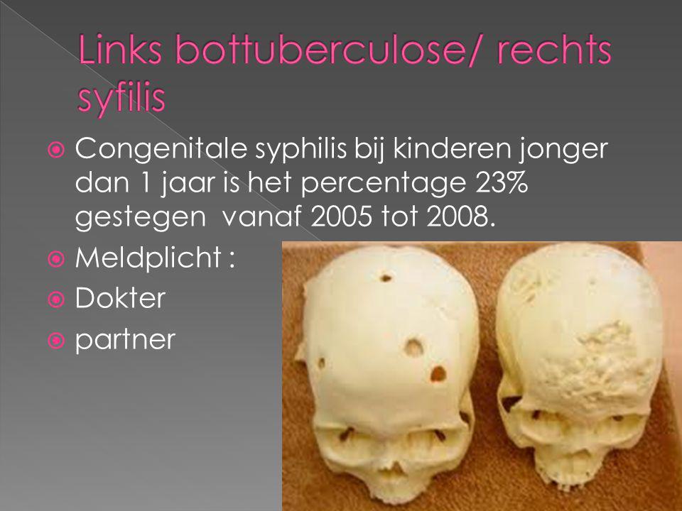  Congenitale syphilis bij kinderen jonger dan 1 jaar is het percentage 23% gestegen vanaf 2005 tot 2008.  Meldplicht :  Dokter  partner
